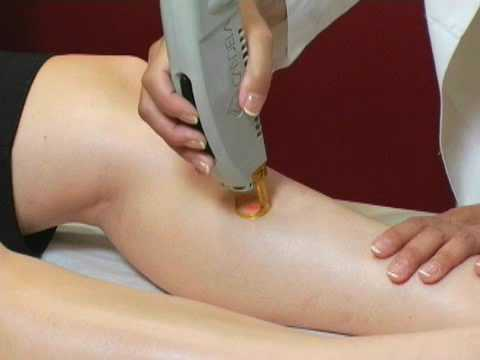 Laser Hair Removal - Remove Unwanted Hair Permanently