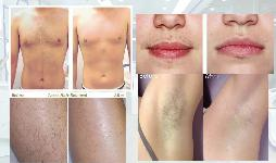 Triple Wavelength Diode Laser Hair Removal Machine